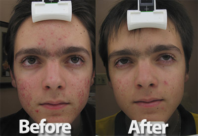 Before and after photo of boy getting acne treated