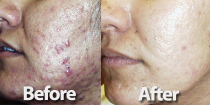 before and after photo of woman getting acne treated