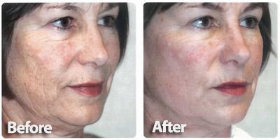 fractional skin resurfacing