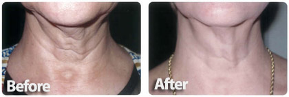 skin firming treatment for neck