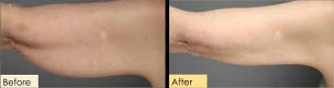 Before and After Photo Smart Lipo