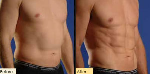 SmartLipo stomach before and after