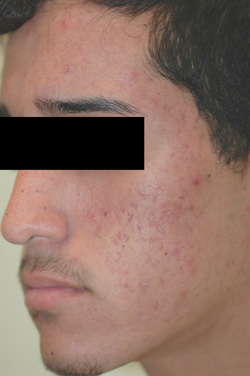 acne treatment before amp after photos onlinesurgerycom