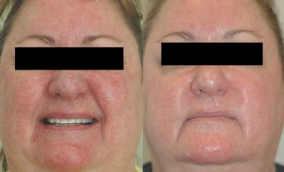 fotofacialipl treatments before amp after photos