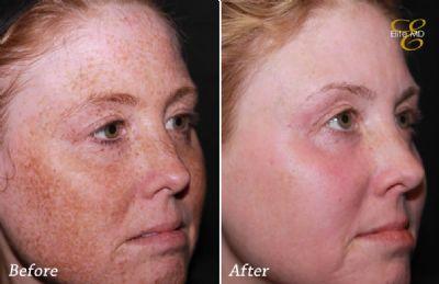 Fotofacial Ipl Treatments Before Amp After Photos