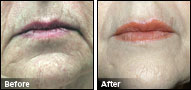JUVEDERM® Before & After Photo