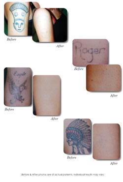tattoo removal methods procedures: tattoo laser removal nashville tn