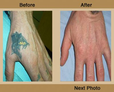 Tags: laser tattoo removal before after dr tattoff