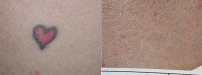 Tatto Removal on Laser Tattoo Removal Before   After Photo