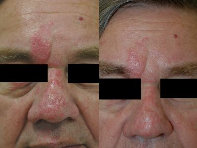 vbeam pulsed dye laser before amp after photos