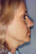 Before Thermage Treatment