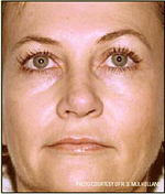 After PhotoFacial Treatment Photo