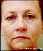 Before PhotoFacial Treatment Photo